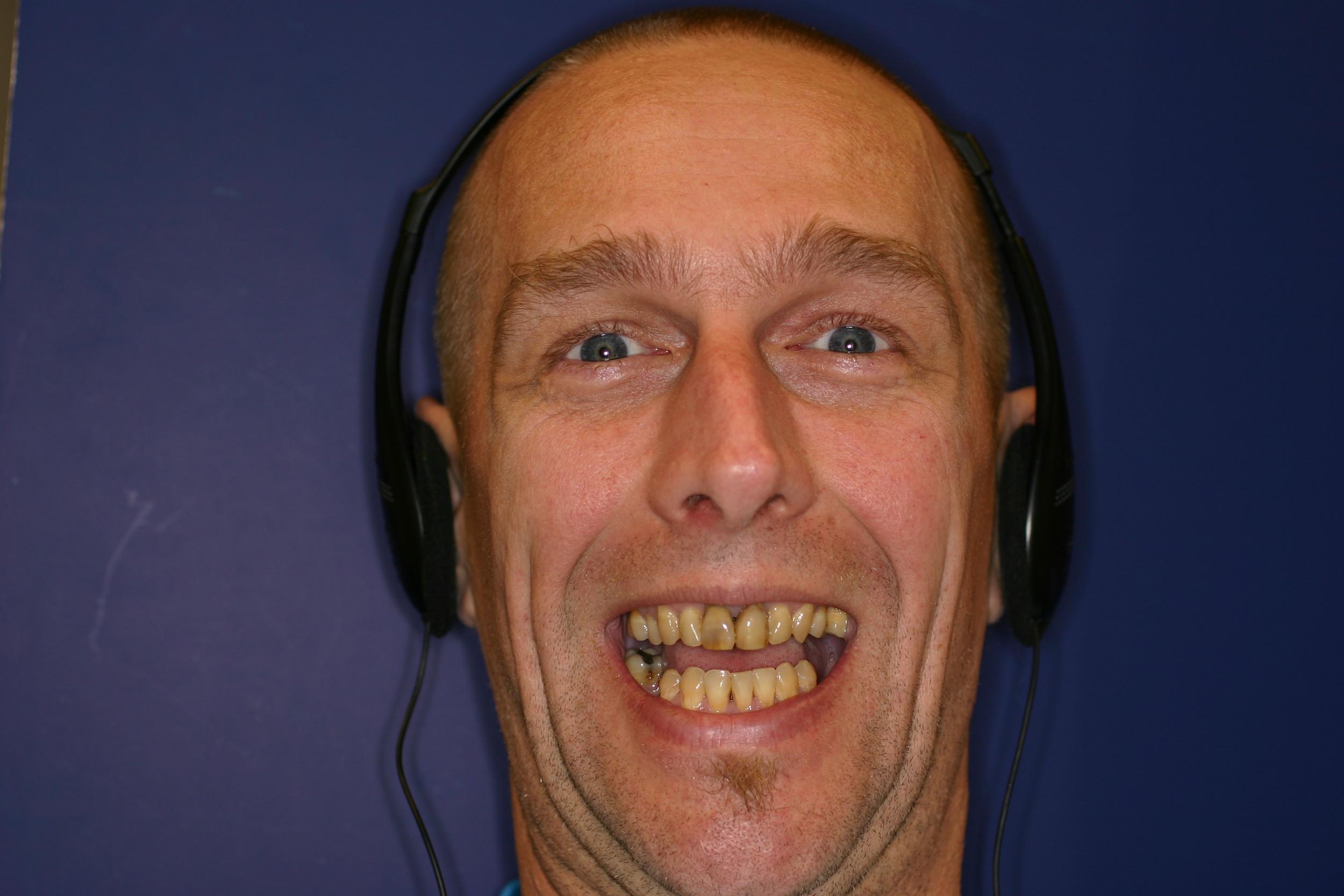 Before - Implants