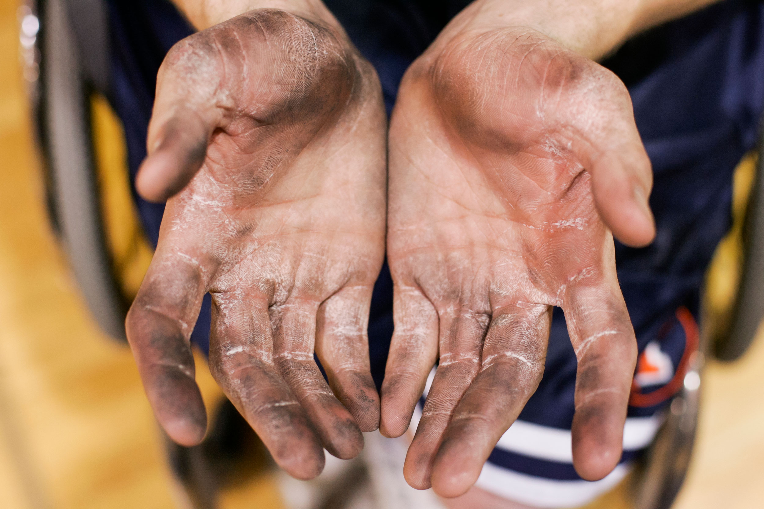 """After playing two games in a row at a University of Wisconsin-Whitewater tournament, Denny Muha's hands show calluses, peeling skin, and caked-on dirt. His hands get so dirty from pushing his wheelchair so much. """"Some courts are dirtier than others,"""" Muha remarked."""