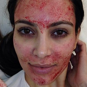 Kim kardashian after vampire facial