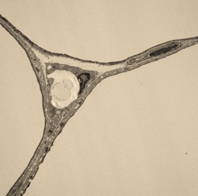 EM of Adipocytes.jpg