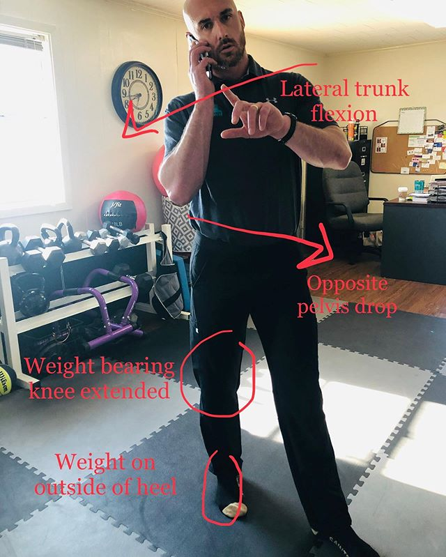 """💥HOW SELF AWARE ARE YOU!!??💥 - 🤔Did you know that simply increasing your  body awareness can help to significantly reduce your risk for back injury? - 👉I present to you one of the MOST common body position faults that I see in people that present to me with back or hip pain....""""The Sassy Cathy"""". - 👣The """"Sassy Cathy"""" is a lazy stance where you have your weight shifted on one leg with the knee extended and the opposite pelvis dropped . I say """"lazy"""" because this stance allows you to rely more heavily on the ligaments in your hip and lower back and decreases support from active muscle activation. - 😧Spending excessive time standing on a locked knee also causes the ground reaction forces to be concentrated on the pelvis which places excessive strain on the lower back. - 🦵Simply allowing the knee to soften or unhinge slightly activates the shock absorbers of the calf and quad musculature. This  decreases the ground reaction force on the pelvis thus decreasing unnecessary lower back strain. - 🧐So how can one bad habit ultimately lead to significant lower back injury and dysfunction? - ‼️Here's a real example: one day an oilfield worker,who has the habit of standing  on the left leg in full extension and right hip dropped, is carrying a 50 pound tool while stepping from a boat to a rig. He relies on his """"trusty"""" left leg to stand while lifting the right to take a step. Then 💥BOOM💥. The second he lifts his right leg.... the right pelvis drops out of habit. The muscles on the right side of the back quickly contract to prevent this and his back """"locks up"""". This individual then comes into the clinic presenting like a disc patient.... - ✅The take home message is BE AWARE of how you are standing. Don't wait until you are in pain to start changing your habits. Most people will find that not only do they frequently spend time in the """"Sassy Cathy"""" stance but it's usually always on the same leg. That kind of repetitive stress over time absolutely places your lower back in a vulnerabl"""