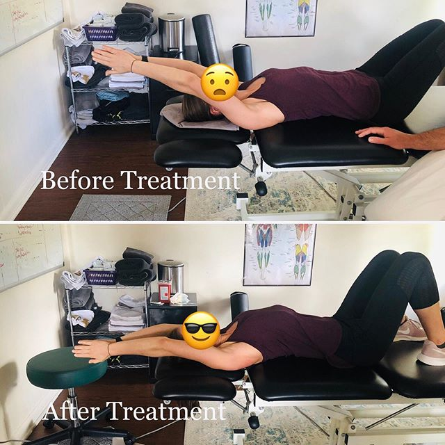 ‼️Can your NECK PAIN be the result of a SHOULDER problem?‼️ - 🤨Both individuals presented in these before and after photos came to our clinic with complaints of neck pain and both were found to have significant limitations of the shoulder on the same side as their neck symptoms. - 💪If you have neck pain the neck-shoulder relationship should NOT be ignored. - ✅To find out more information on this topic check out this blog we published today regarding the very common phenomenon of neck pain resulting from a lack of shoulder mobility: - https://www.landreneauphysio.com/blog/neck-pain - #Landreneauphysio #Physiotherapy #physicaltherapy #Shouldermobility #neckpain #shoulderpain #chronicpain #thoracicmobility #biomechanics #crossfit #functionalfitness #olympicweightlifting #movement #liftingtechnique