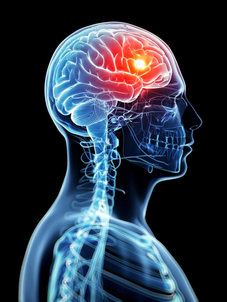 migraine-headache-768x1024.jpeg