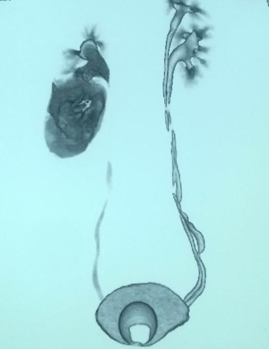 renal-injury-1.jpg