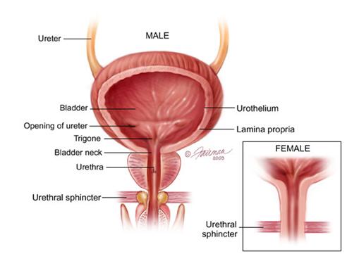 bladder-cancer-1.png