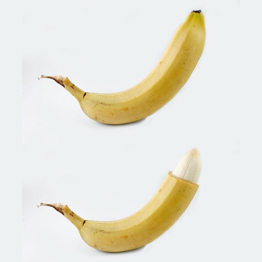 circumcision.jpg
