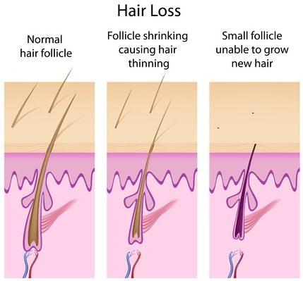 hair-not-growing-e1496860525170.jpg