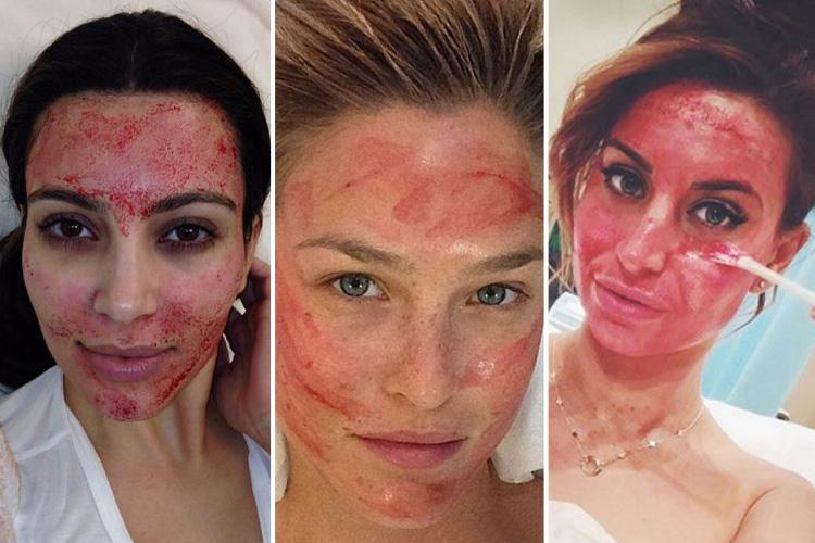 Popular procedure among the hottest celebs in Hollywood