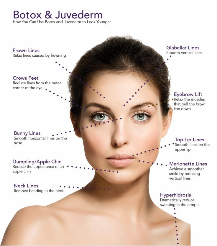 5fe7d7ad9854647a1877b41accd34b1c--family-practice-botox-injections.jpg