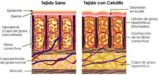 #dermotheque #celulitis #dermatologas #dermatologiaestetica #pielsana #piel bonita.jpg