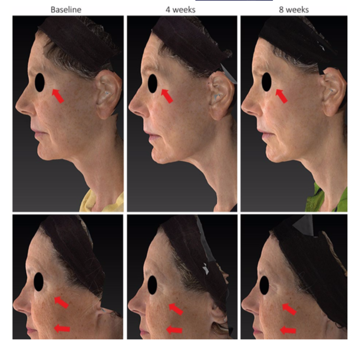 Imagen del artículo: Gold M, Ablon G, Andriessen A, et al. Facial cleansing with a sonic brush—A review of the literature and current recommendations. J Cosme Dermatol.2019,18(3):686-691.