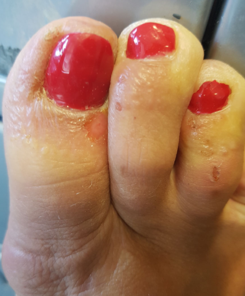 Imagen de  Nail cosmetics: a dermatological perspective. N. Dinaniand S. George. Clinical and Experimental Dermatology (2019) 44, pp599–605