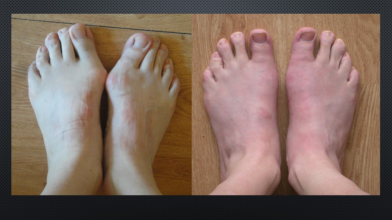 Pictures from before, and 6 weeks after, open bunion surgery (Scarf and Akin osteotomies).   Reproduced with permission