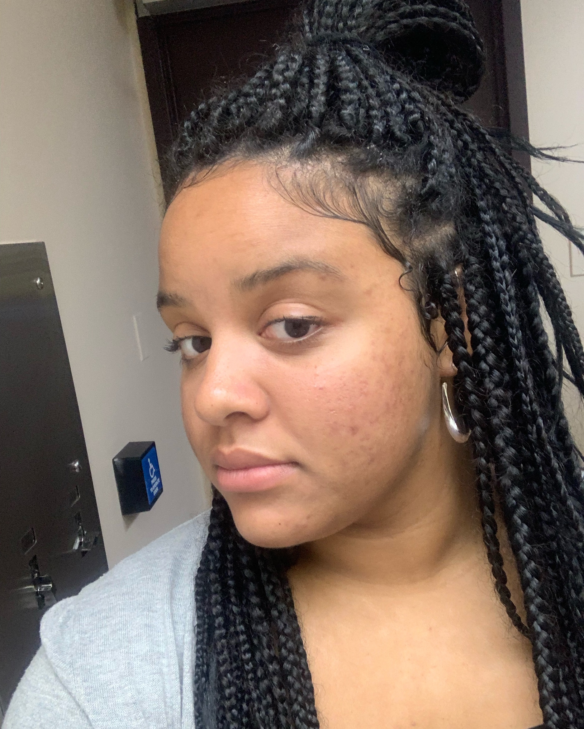 Box Braids On Biracial Hair I Have Alot To Say
