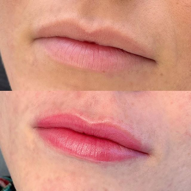 AQUARELLE LIPS 💋 Last 1-3 years, almost painless and absolutely gorgeous natural results. // Color used: Sweet Melissa & Pillow talk