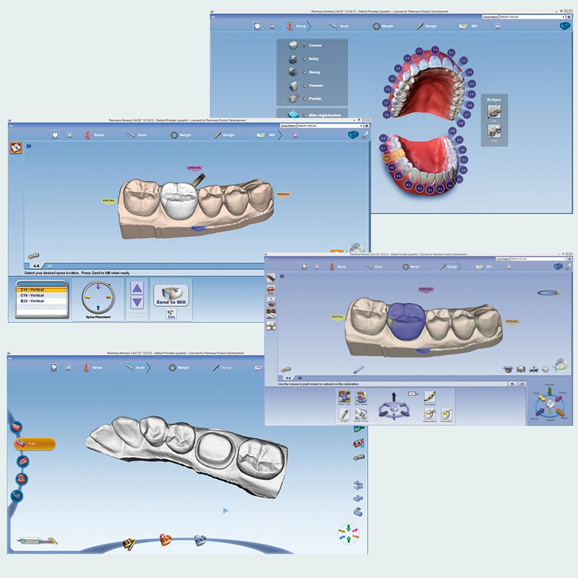 Synergy Planmeca PlanCAD®.jpg