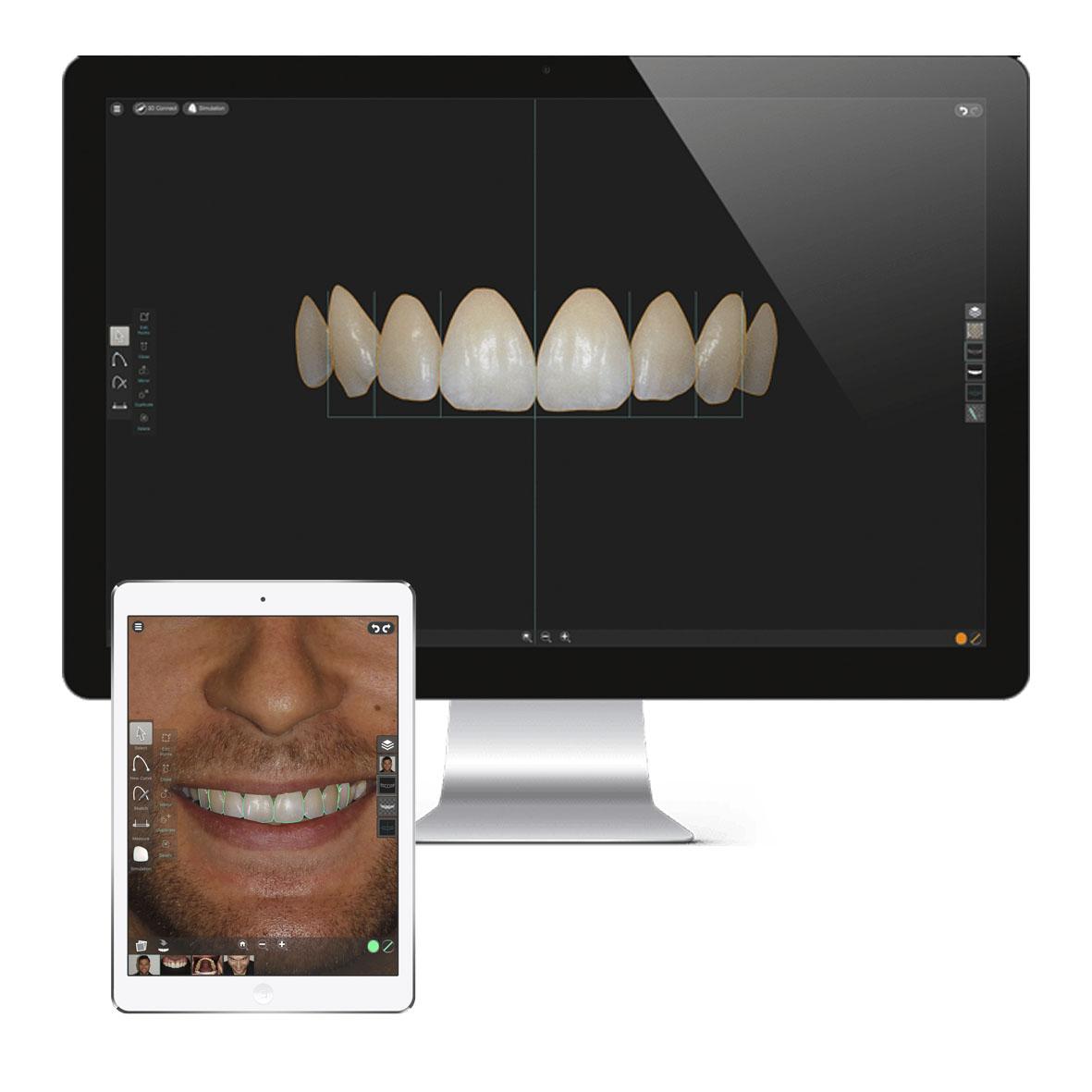 Synergy Smile Designer Pro.jpg