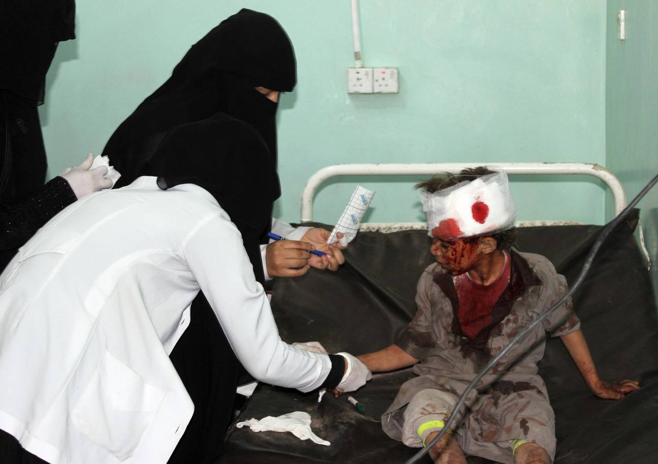 A Yemeni child receives treatment at a hospital after being wounded in a reported Saudi-led coalition air strike on a bus carrying children, leaving dozens of people dead or wounded  ( STRINGER/AFP/Getty Images )