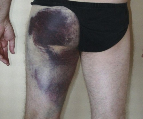 Figure 3 . Clinical appearance of diffuse posterior thigh ecchymosis with proximal myotendinous hamstring injury [source: http://www.roberthowells.com.au/wp-content/uploads/2016/04/F1.large-1-e1459509065169.jpg]