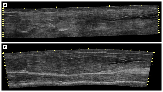 Figure 4 : Ultrasound appearance of normal and injured hamstring muscle . [Source: https://www-uptodate-com.une.idm.oclc.org/contents/images/EM/91240/Hamstr_inj_ultrasound.jpg]