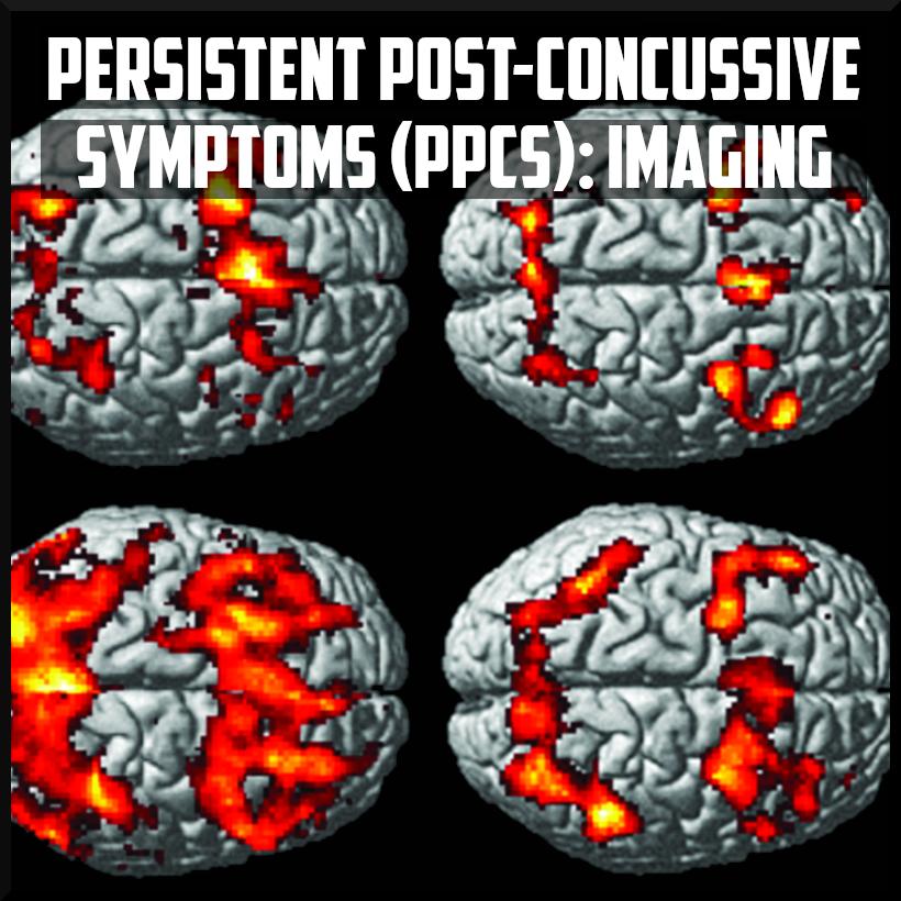 persistent post concussive symptoms - imaging cover.png
