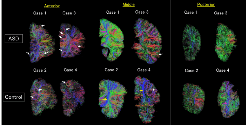 https://www.researchgate.net/figure/Diffusion-tensor-imaging-DTI-tractograpy-The-color-coding-of-tractography-pathways-was_fig2_301943395
