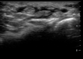 Changing the Game: The Butterfly iQ Ultrasound — The Sports