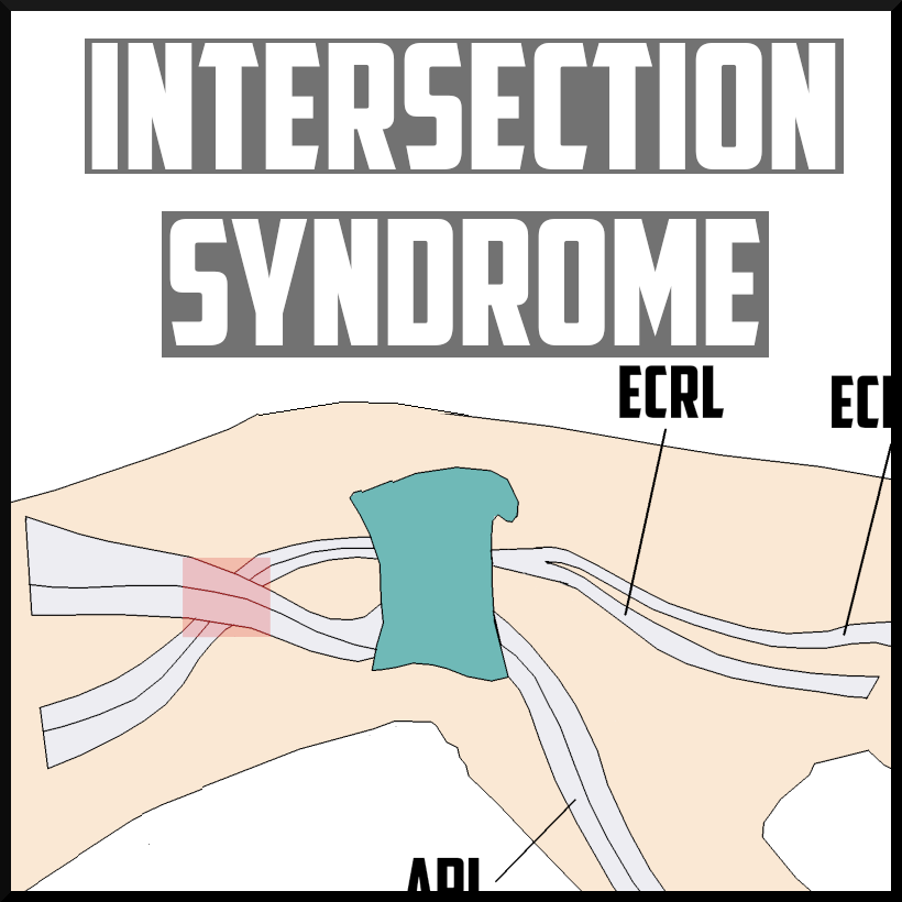 intersection syndrome cover.png