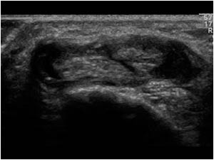 Image 3 . Short axis ultrasound of 2nd extensor compartment (source: http://www.ultrasoundcases.info/default.aspx)