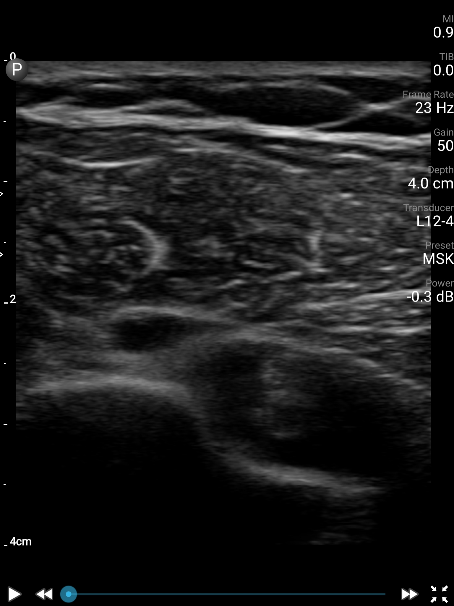 Image 10 . Biceps tendon edema in short axis.