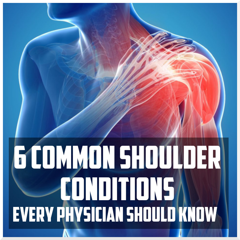 6 common shoulder conditions every physician should know cover.jpeg
