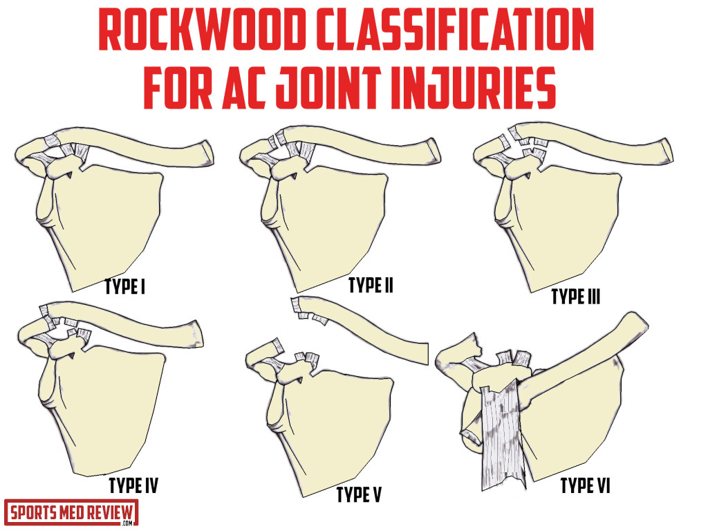 Image 5 . Illustration of rockwood classification for AC joint injuries.