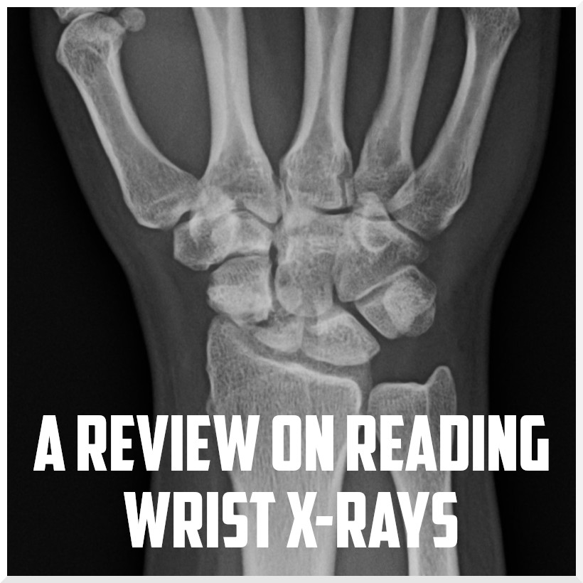 A review on reading wrist x-rays cover.jpeg