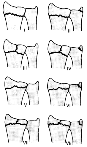 Figure 14 : Frykman classification of radius fractures (Charles Goldfarb MD, 2001)