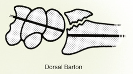 Figure 11 : Dorsal Barton (Wolfe, 2017)