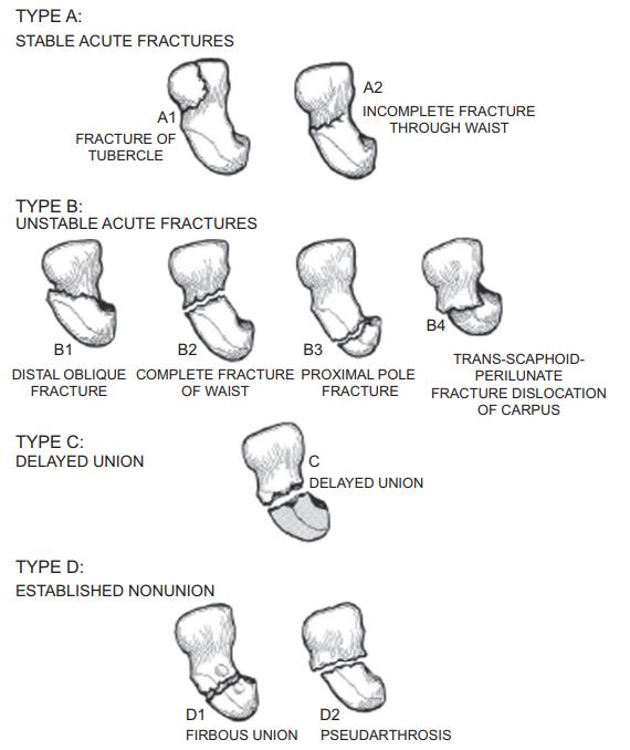 Figure 6 : The Herbert Classification of Scaphoid Fractures (John Fowler, 2015)