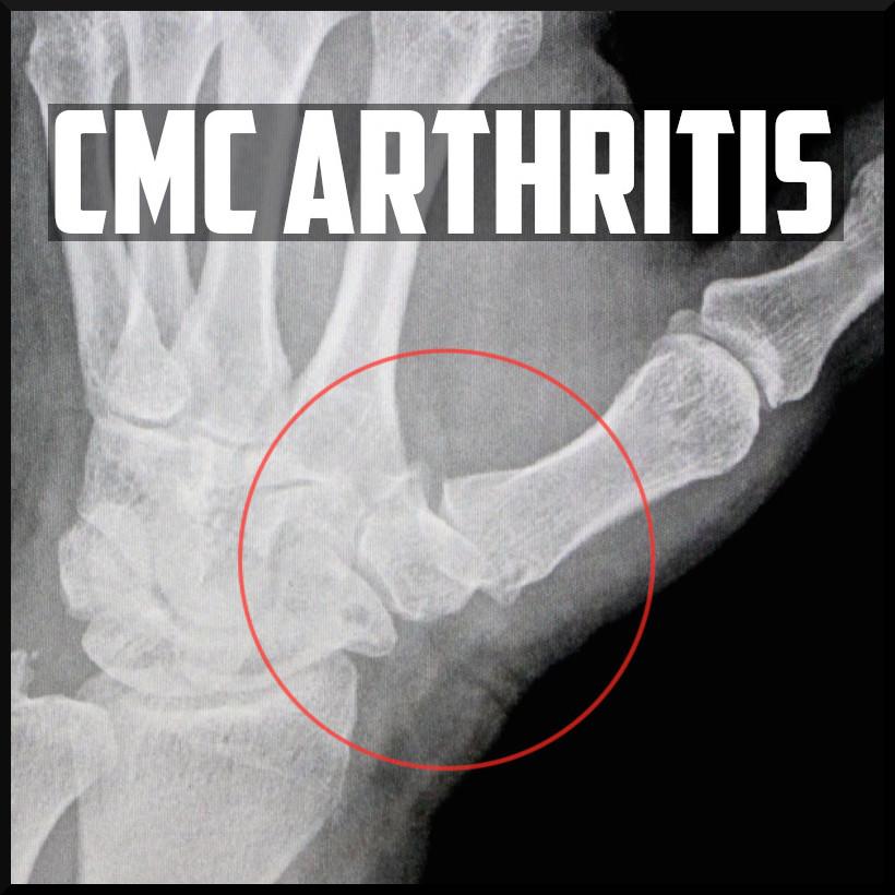 cmc arthritis cover.jpeg