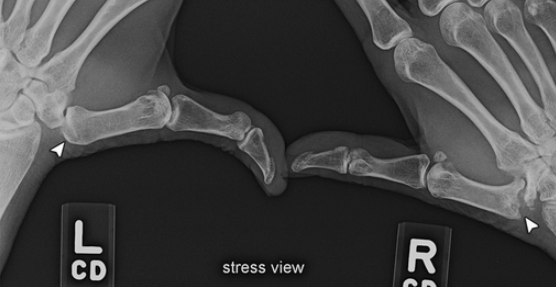 Figure 1. Trapezial articulation is the basal joint stress view (David Melville, 2015)