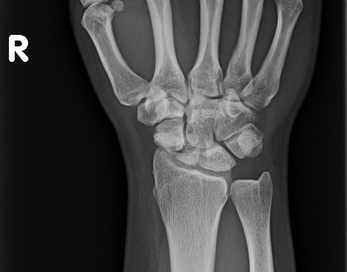 Image 1 . AP wrist radiograph demonstrating a chronic scaphoid waist fracture.