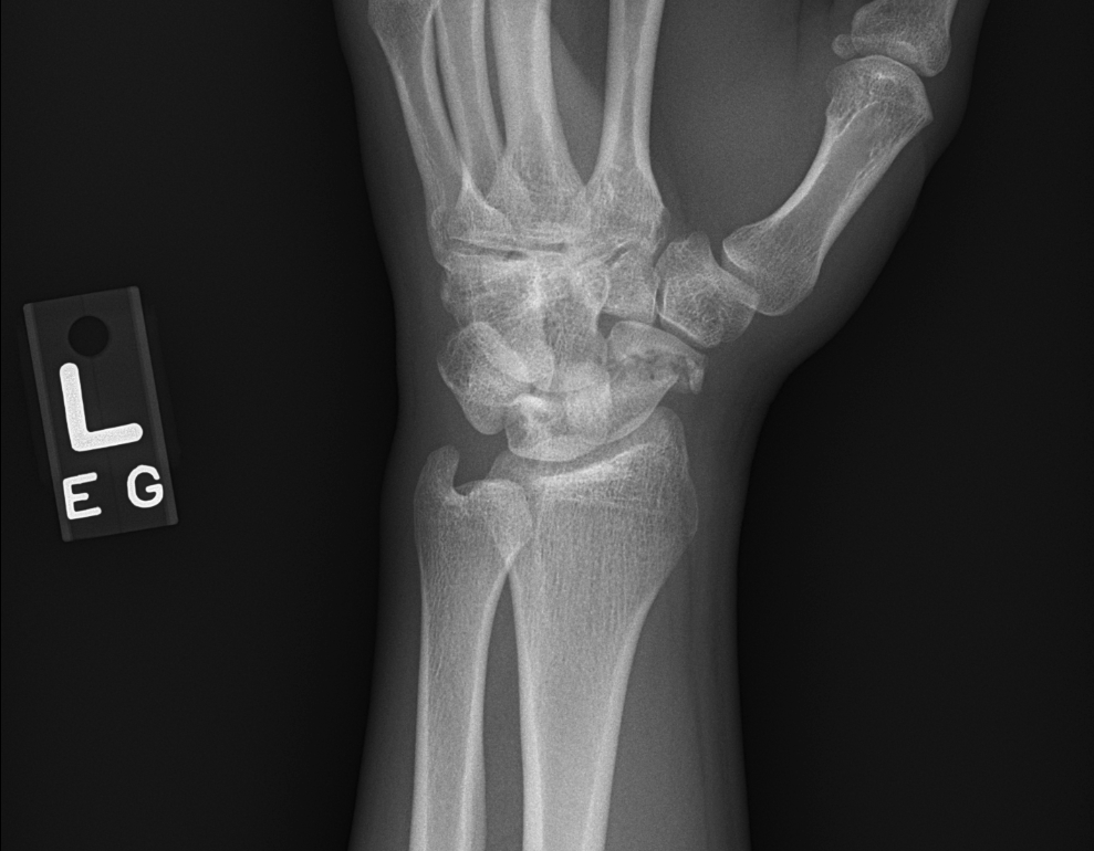 Image 2 . Oblique radiograph of the wrist showing acute, displaced scaphoid waist fracture.