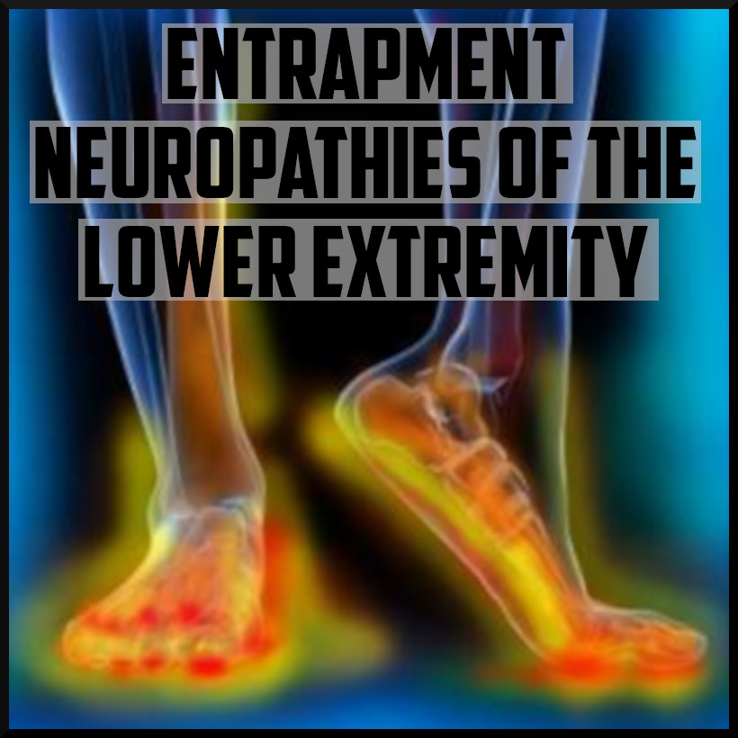 entrapment neuropathies of the lower extremity.jpeg