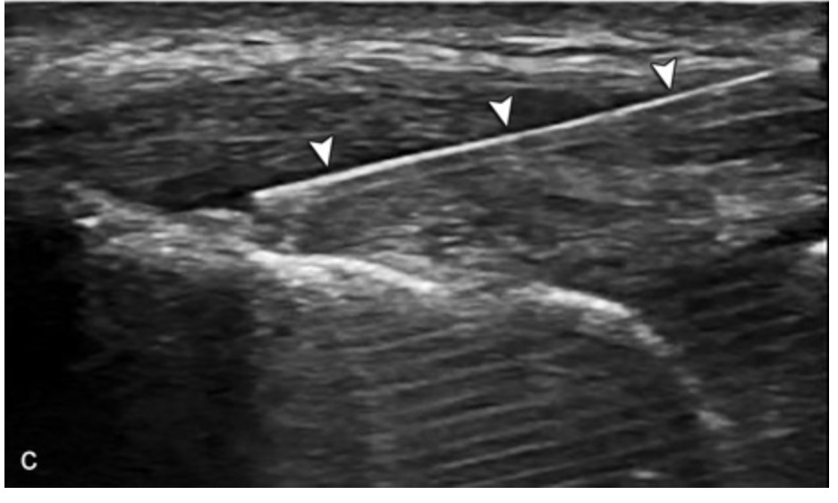 Image 1.  Needle tenotomy of common extensor tendon adopted from Jacobson.