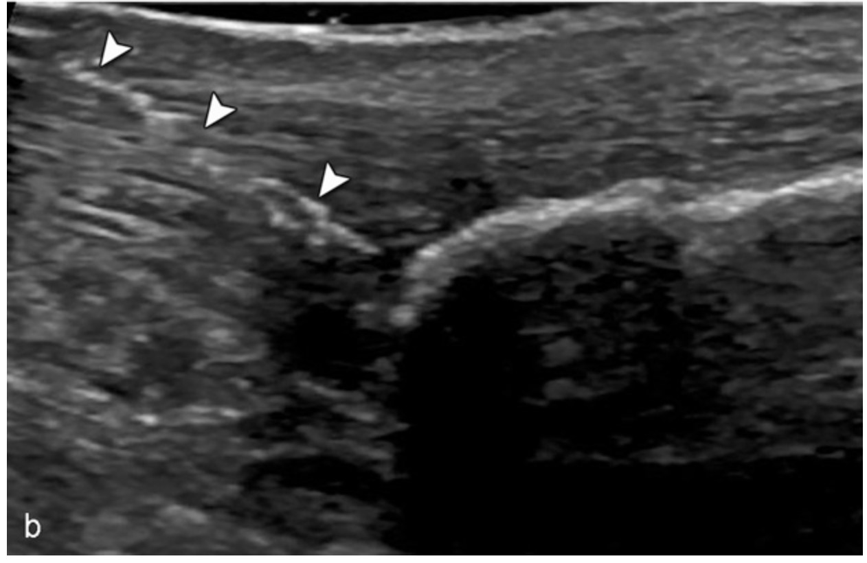 Image 2 . Needle tenotomy of achilles tendon adopted from Jacobson.