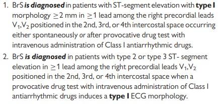 Figure 3 . Brugada Syndrome Criteria (Silvia Priori, 2013)