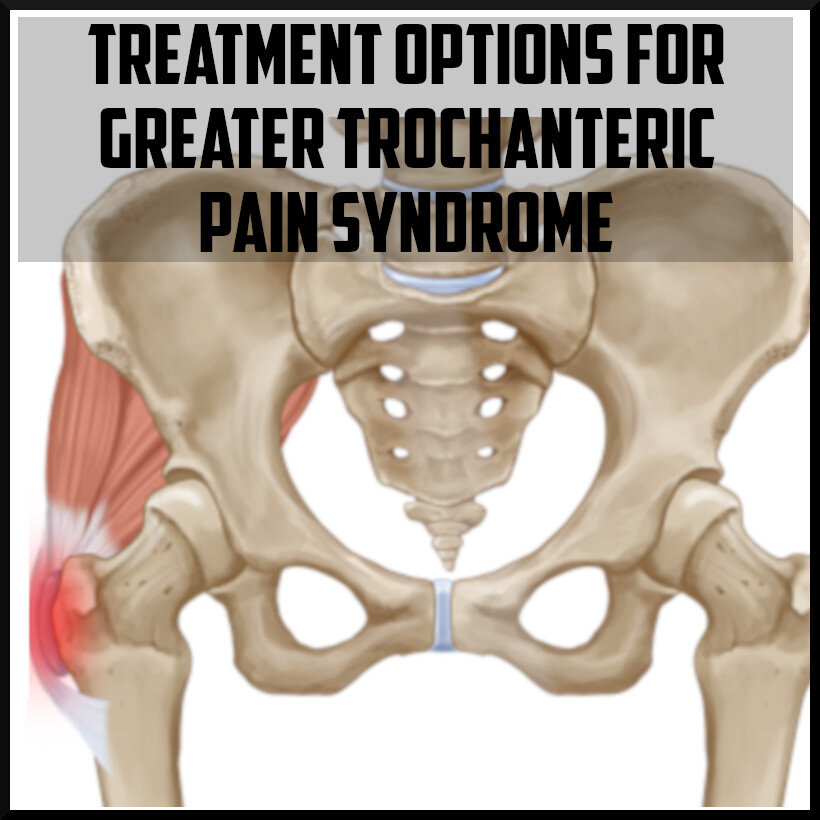 Treatment options for greater trochanteric pain syndrome.jpg