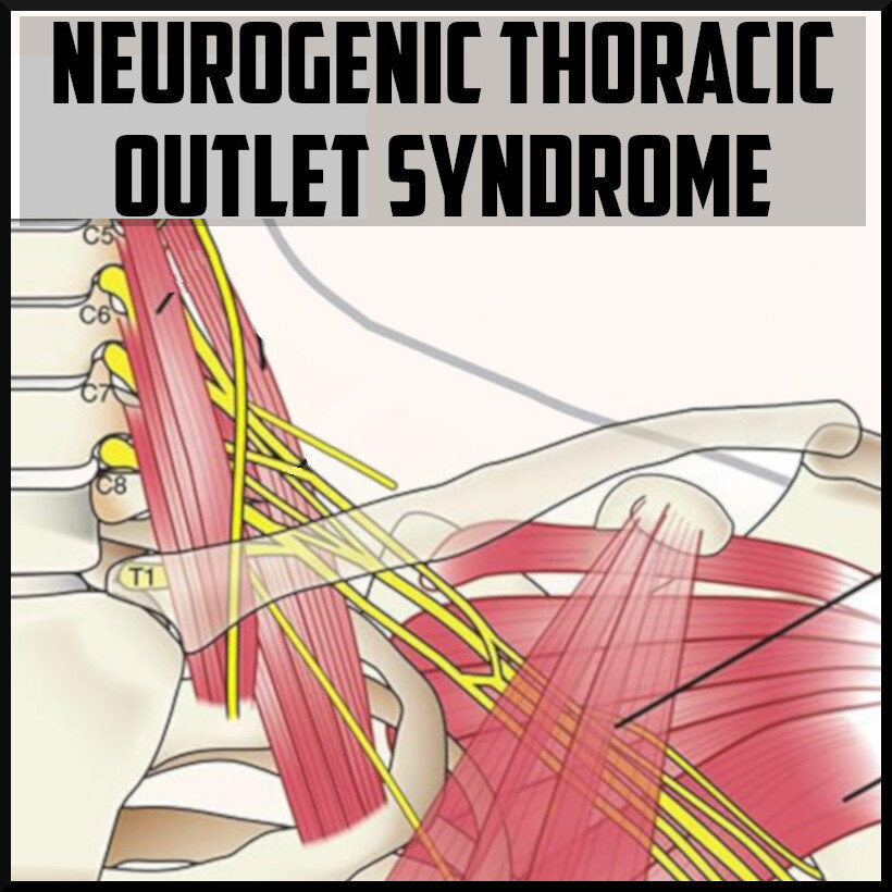 Neurogenic Thoracic Outlet Syndrome The Sports Medicine Review