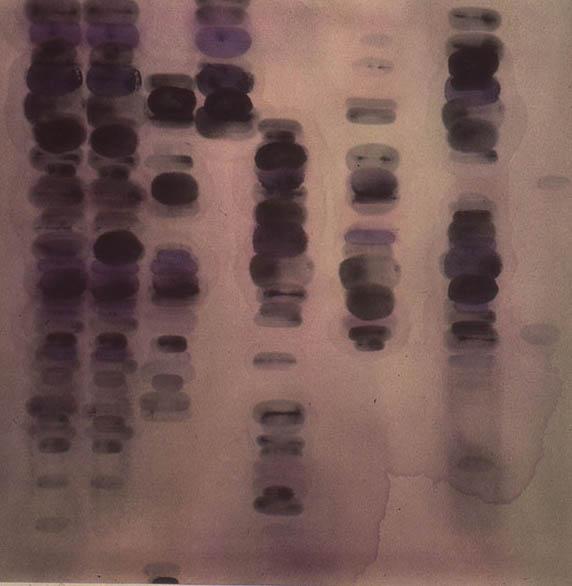 "Untitled, 28"" x 28"", 1991"