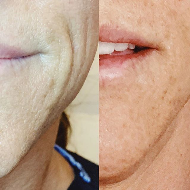 Filler Friday!!! I love seeing these transformations!! Filler can be used to restore volume and correct fine lines and folds! • Please plan ahead and book two weeks in advance • Booking into December so please BOOK NOW! Link in bio 💋 • • #skincaretips #beauty #glam #newblogger #skincareblogger #beforeandafter #fillers #injections #lipflip #lippies #lips #lipgoals #lipsonfleek #faceonfleek #cheekfillers #restylane #juvederm #juvedermlips #friyay #photooftheday #instaglam #instamood