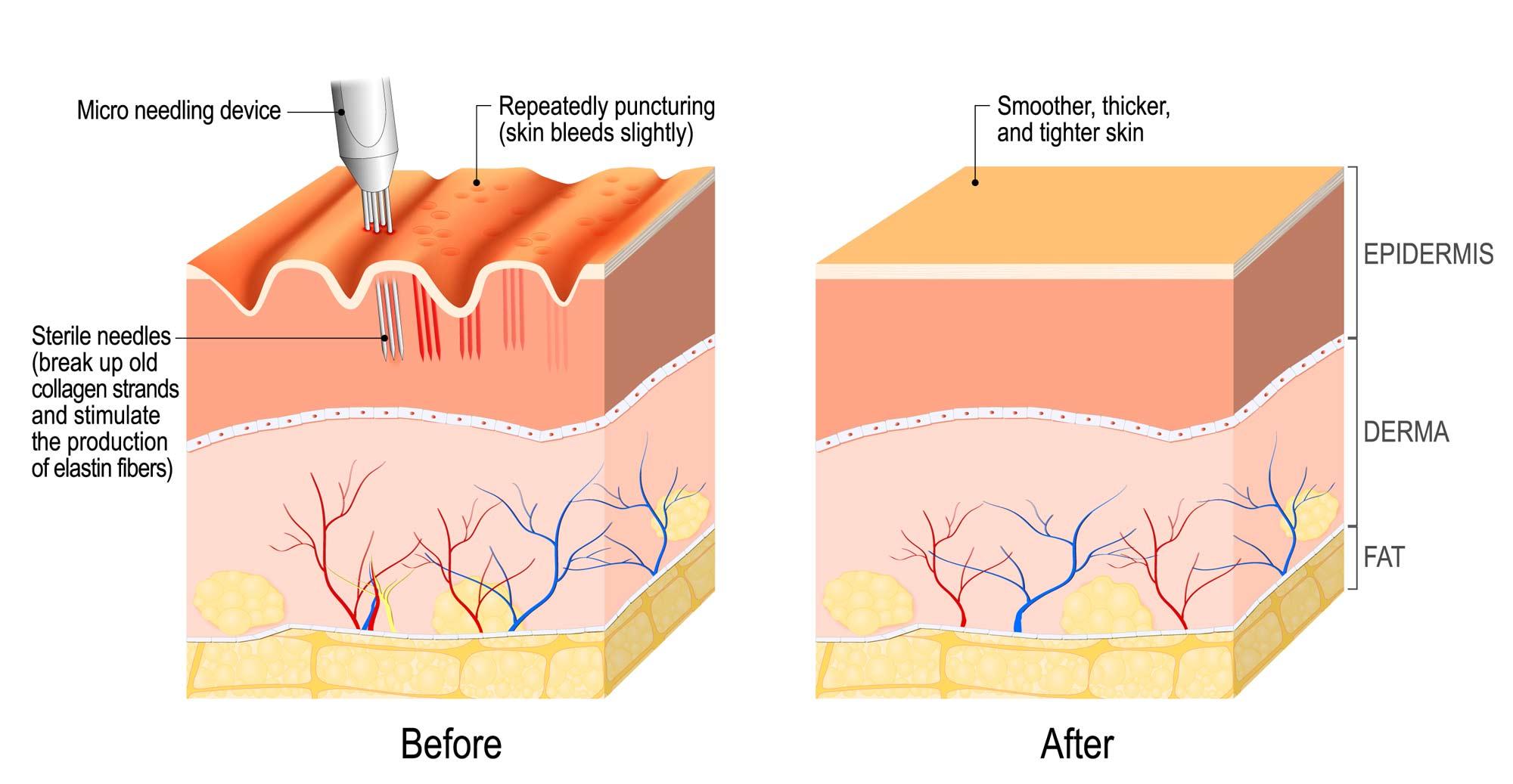 Embrow-Beauty-Dermapen-Micro-Needling-Therapy.jpg