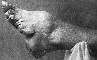 chinese foot binding1.8